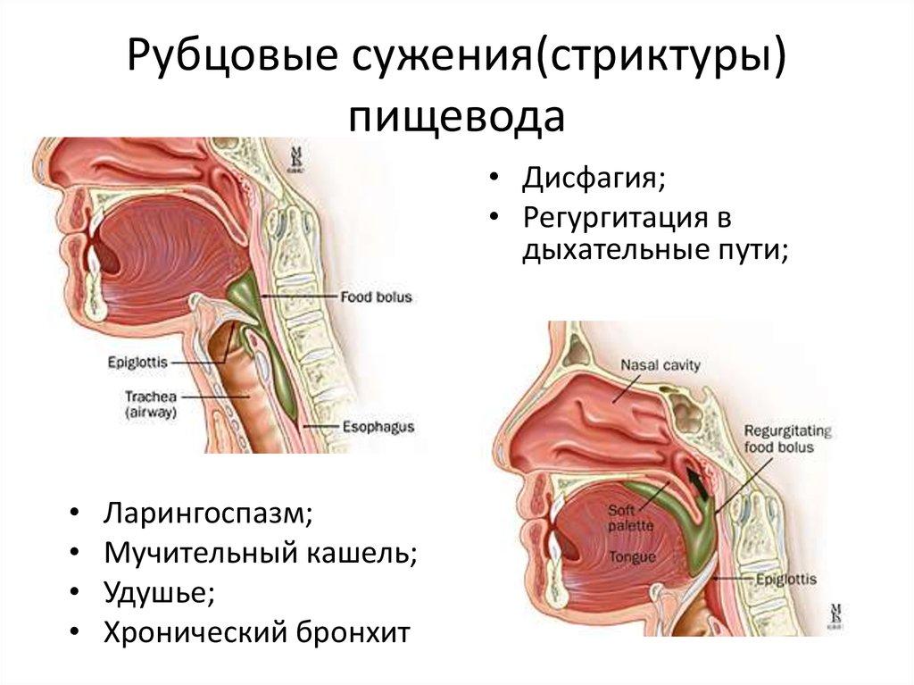 сужение пищевода (стеноз)