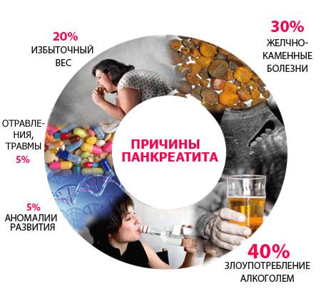 причины панкреатита