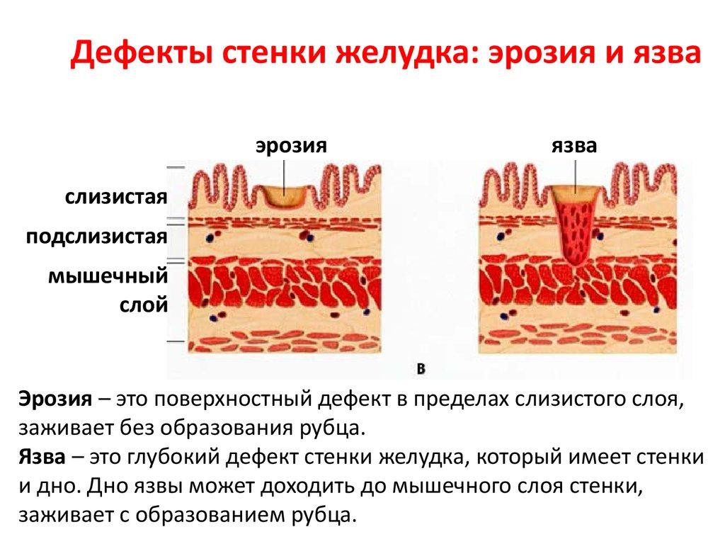 Причины эрозии желудка