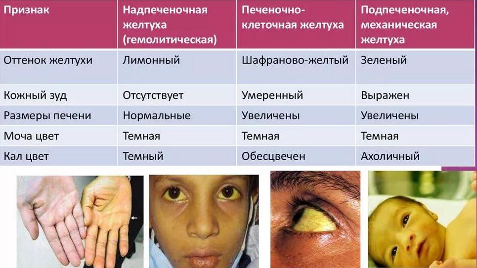 желтуха симптомы у взрослых