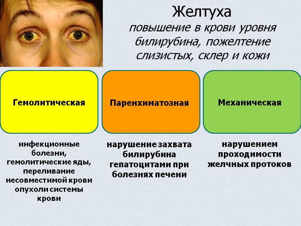 Причины возникновения желтухи