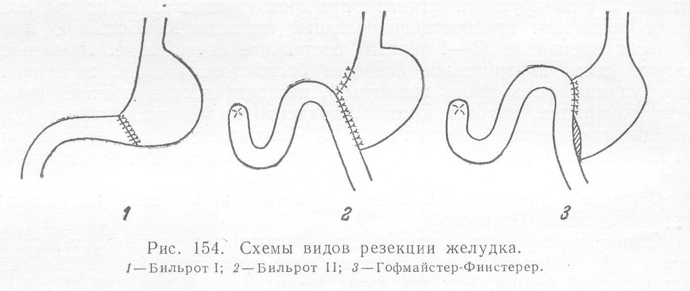 Методы резекции желудка