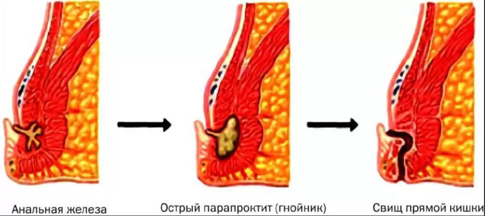 стадии развития свища прямой кишки